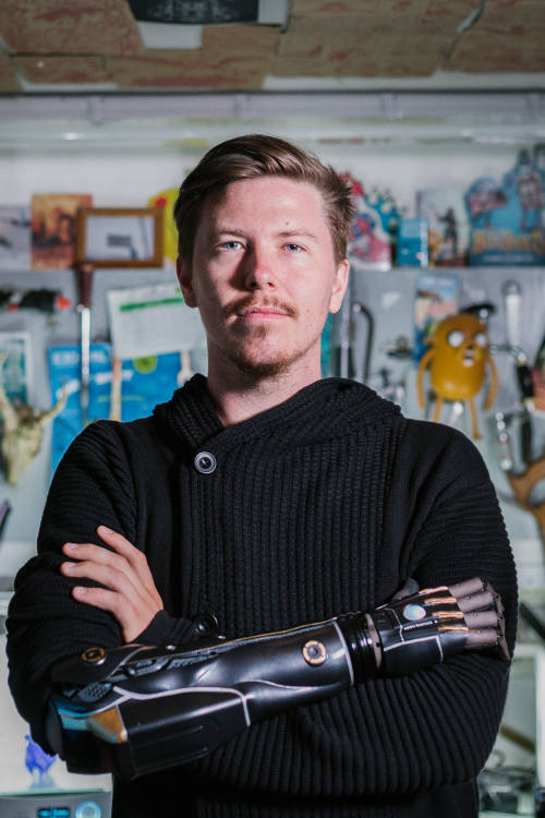 Dan, the gamer with a bionic arm